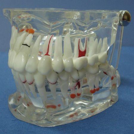 dental dentist tooth teeth anatomical model models anatomy philippines -- Everything Else -- Metro Manila, Philippines
