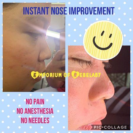 lip filler, hyaluron pen philippines, hyaluron pen training, nose job filler, chin augmentation, cheek augmentation, painless botox -- Everything Else -- Metro Manila, Philippines